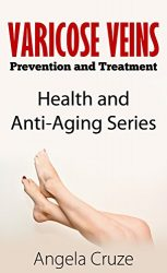 A Guide to Varicose Vein Prevention and Treatment (anti-aging): Health and Anti-Aging Series