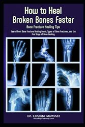 How to Heal Broken Bones Faster. Bone Fracture Healing Tips: Learn About Bone Fracture Healing Foods, Types of Bone Fractures, and the Five Stages of Bone Healing (Anti-aging)